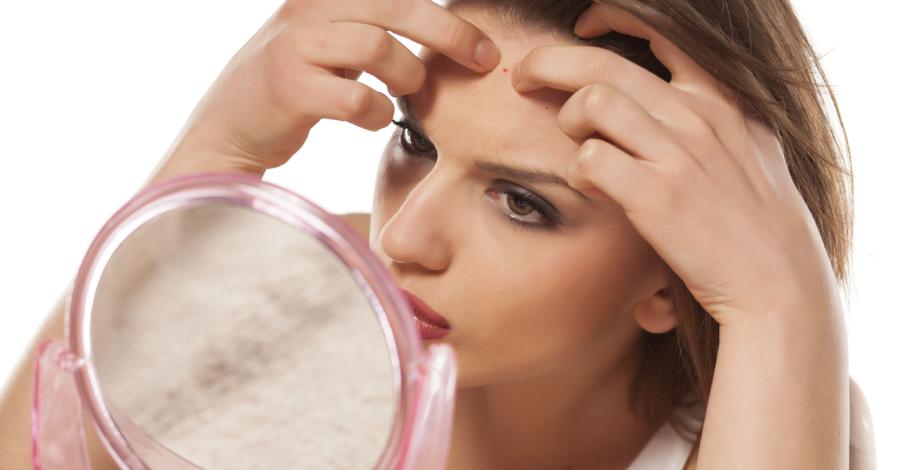 Acne adulta: dicas para evitar e tratar o problema