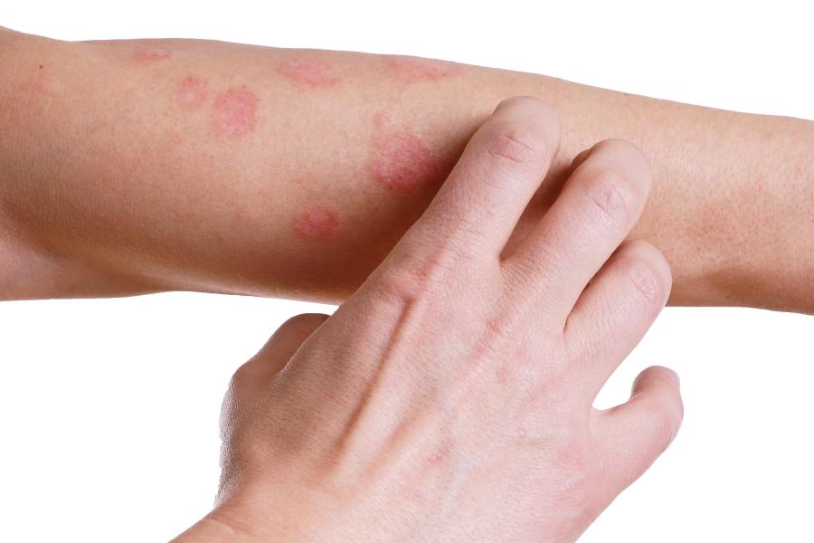 Psoríase: saiba tudo sobre essa doença de pele
