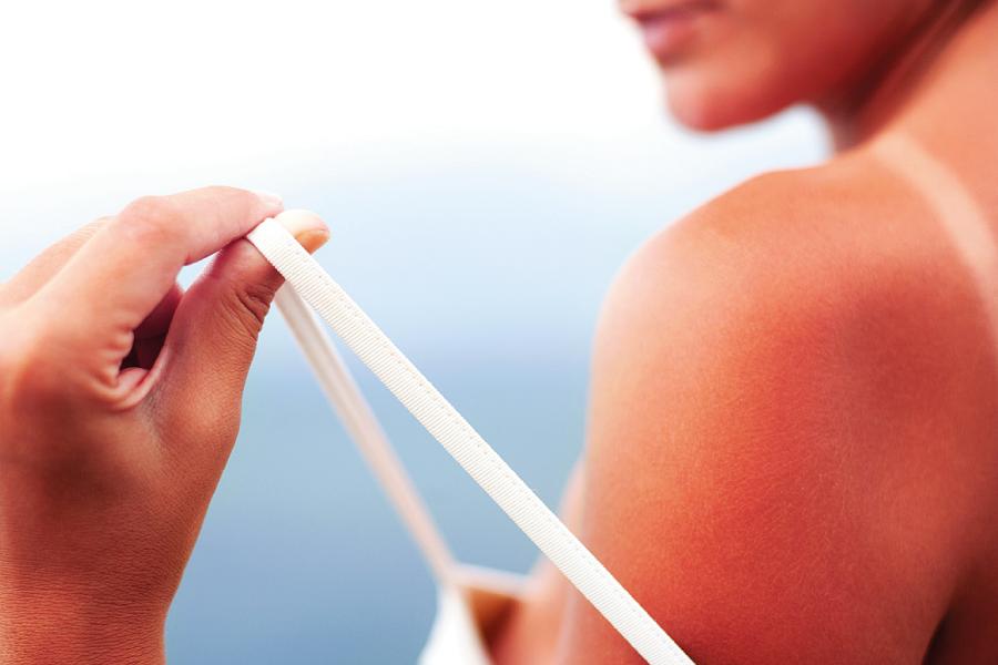 Dicas para aliviar queimaduras de sol