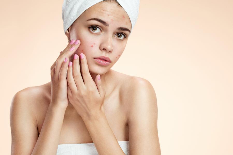 Problemas hormonais: confira sintomas e sinais na pele