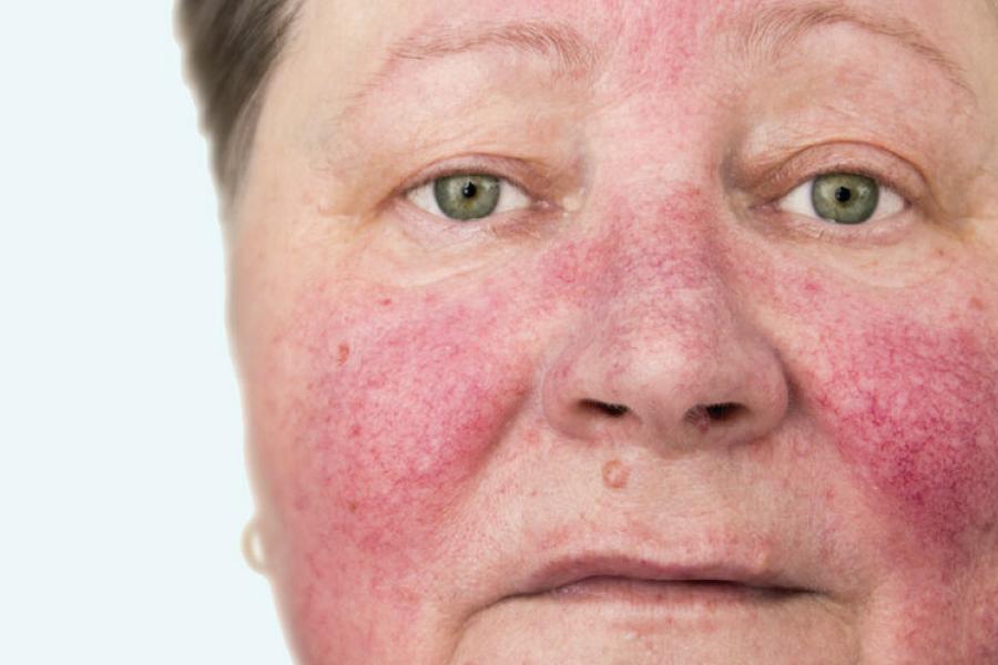 Rosácea: causas, sintomas e tratamento