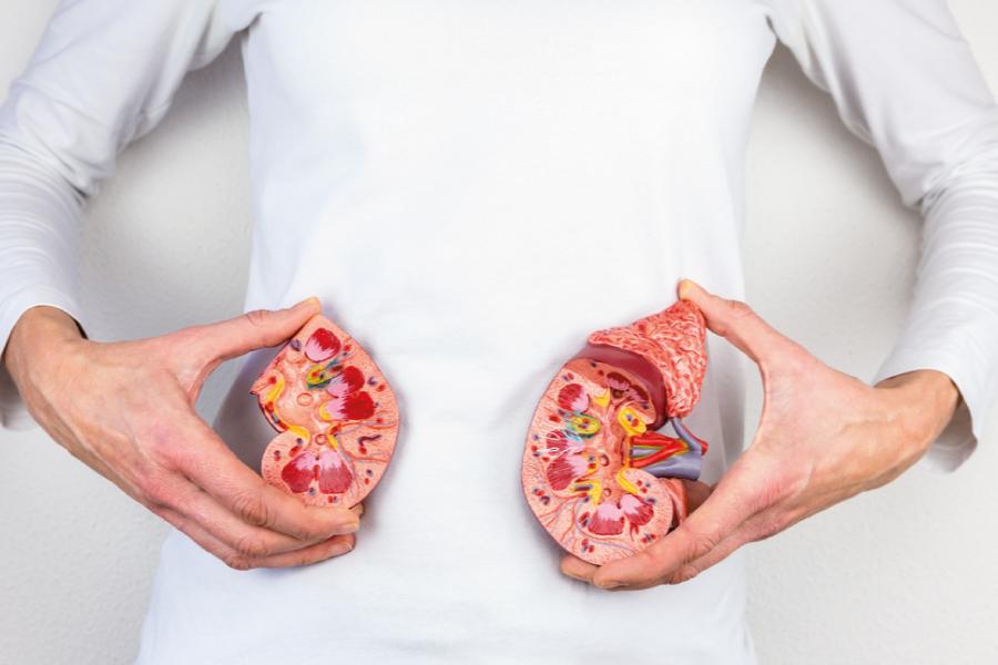 Cálculo renal – Sintomas, causas e tratamento